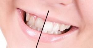 Dişlerin Beyazlaması İçin Öneriler